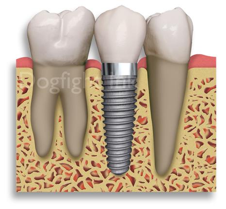 دندانپزشک و ایمپلنت